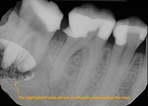 The highlighted tooth shows an abscess surrounding the root. A root canal is necessary to prevent more additional infection.