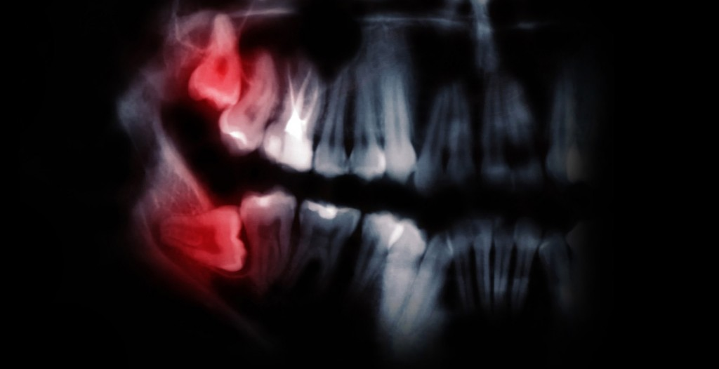 Wisdom Teeth Removal Vancouver - Image of teeth x-ray with lighting effects. Wisdom teeth removal Kitsilano