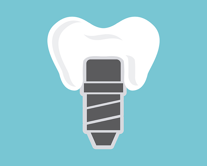 dental implants design | Vancouver dentist