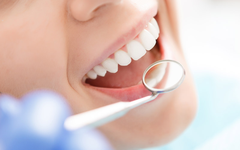 Kitsilano Dentist - Kitsilano Dental Services for families - White teeth and mirror